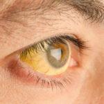 el-sindrome-de-gilberts-causa-sintomas-tratamiento-y-prevencion