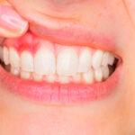 encias-sangrantes-causa-tratamiento-prevencion