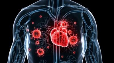 enfermedad-cardiaca-causa-sintomas-tratamiento-prevencion