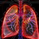 enfermedad-pulmonar-intersticial-sintomas-tipos-tratamiento