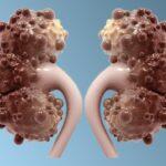 enfermedad-renal-poliquistica-causa-sintomas-prevencion