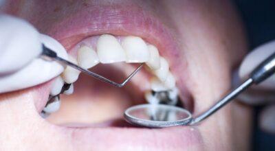 envenenamiento-por-metales-pesados-sintomas-y-tratamientos