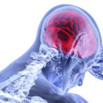 esclerosis-lateral-amiotrofica-causas-y-sintomas-de-la-ela