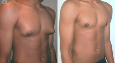 ginecomastia-causa-sintomas-tratamiento-prevencion