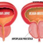 hiperplasia-prostatica-benigna-bph-sintomas-causas-y-tratamiento