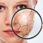 ictiosis-vulgar-causa-sintomas-diagnostico-y-prevencion