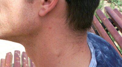 inflamacion-de-los-ganglios-linfaticos-causa-sintomas-tratamiento-prevencion