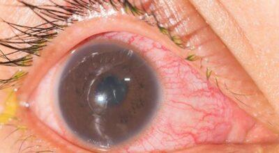 iritis-causa-sintomas-tratamiento-y-prevencion
