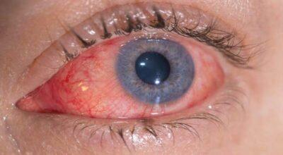 la-conjuntivitis-alergica-causa-sintomas-y-remedios
