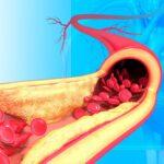 la-diseccion-aortica-causa-sintomas-complicaciones-y-tratamientos