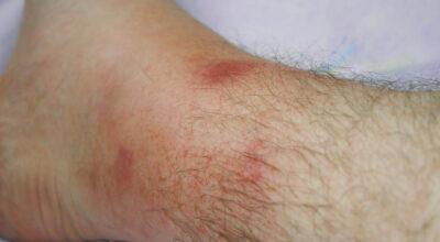 la-fiebre-mediterranea-familiar-causa-sintomas-y-tratamientos