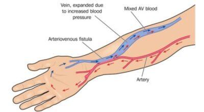 la-fistula-arteriovenosa-causa-sintomas-y-tratamiento