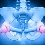 la-osteoporosis-causa-sintomas-tratamiento-y-prevencion