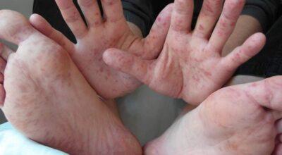 la-pirexia-causa-sintomas-diagnostico-tratamiento-y-prevencion