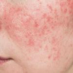 la-rosacea-causa-sintomas-tratamientos-y-prevencion