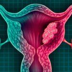 masa-del-cuello-causa-sintomas-factores-de-riesgo-diagnostico-y-tratamiento