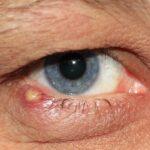 orzuelo-causa-sintomas-diagnostico-tratamiento-y-prevencion