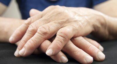 que-es-la-inflamacion-de-las-articulaciones-calculadora-de-riesgo-de-artritis-y-remedios