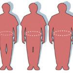 que-relacion-hay-entre-la-obesidad-la-enfermedad-cardiovascular