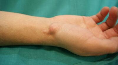 quiste-de-ganglio-quiste-biblico-causa-sintomas-y-tratamientos