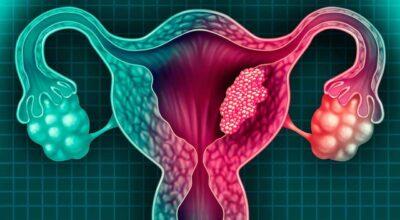 quiste-ovarico-causa-sintomas-factores-de-riesgo-y-tratamiento