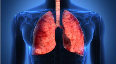 sintomas-de-fibrosis-pulmonar-causas-tratamiento