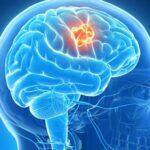 sintomas-de-glioma-causas-tipos-y-prevencion