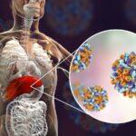 sintomas-de-hepatotoxicidad-de-hepatitis-toxica-causas-prevencion