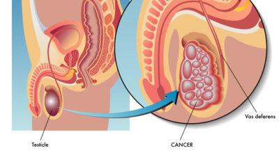 testiculos-no-descendidos-criptorquidia-causa-sintomas-y-tratamiento