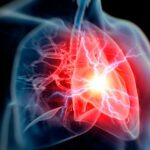 tipos-de-choque-causas-sintomas-tratamiento-prevencion