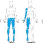 tipos-de-paralisis-cerebral-causa-signos-sintomas