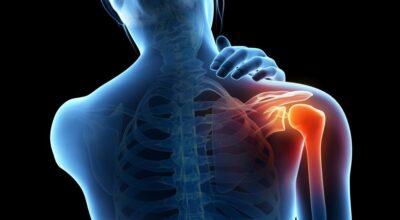 tratamiento-de-sintomas-de-capsulitis-adhesiva-de-hombro-congelado
