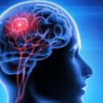 tumor-cerebral-causas-sintomas-tratamientos-y-prevencion