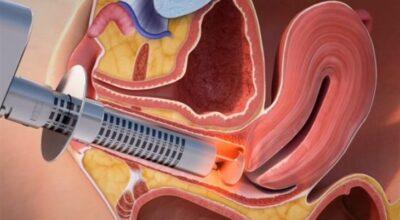 vaginitis-atrofica-causas-sintomas-tratamientos-y-remedios