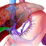 varices-esofagicas-causas-sintomas-tratamientos-remedios