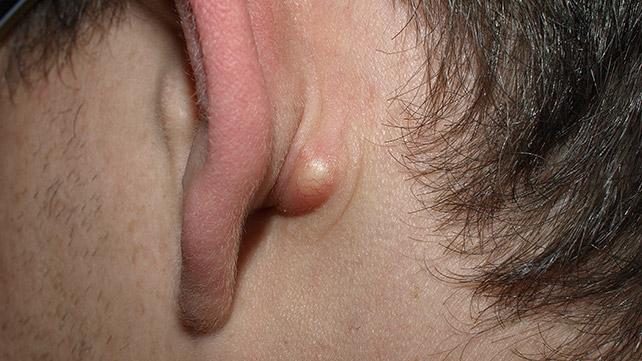 detrás de la oreja