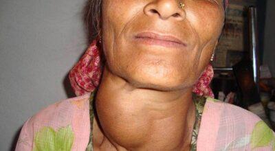 cancer-de-cabeza-y-cuello-causas-sintomas-factores-de-riesgo-complicaciones-diagnostico-tratamiento-y-prevencion