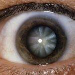 catarata-causas-sintomas-tipos-tratamiento-y-prevencion