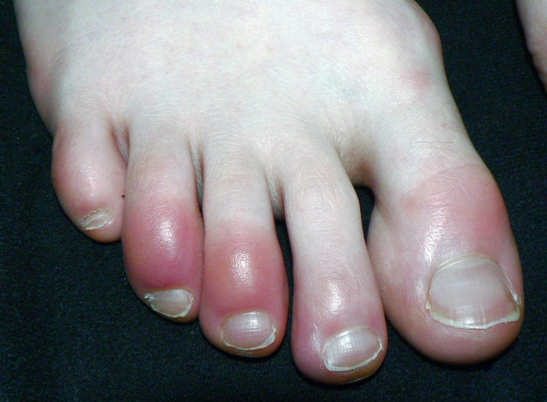 enfermedades-de-la-una-del-dedo-gordo-del-pie