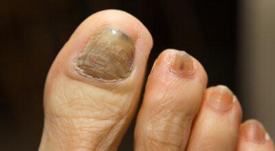 enfermedades de la uña del dedo gordo del pie