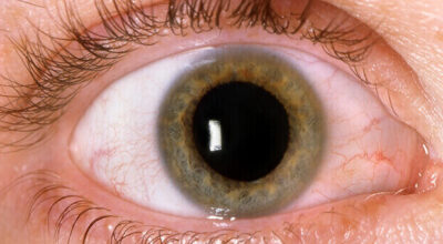 retinopatia-diabetica-causas-sintomas-prevencion-y-cura