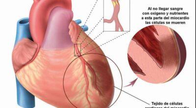 sindrome-de-barlow-causas-sintomas-tipos-y-tratamiento
