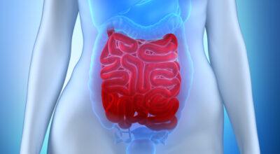 tumor-carcinoide-causas-sintomas-tratamientos-y-prevencion