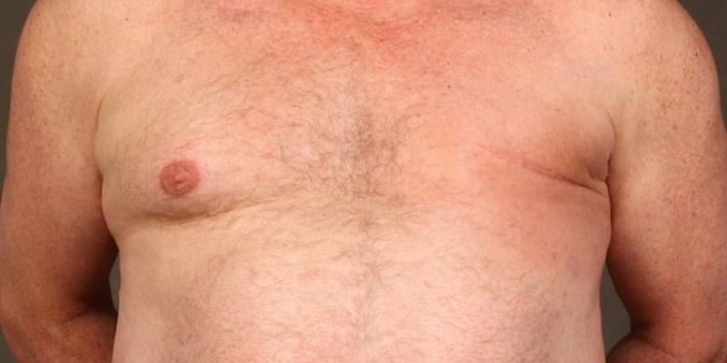 Cómo se desarrolla el cáncer de mama masculino